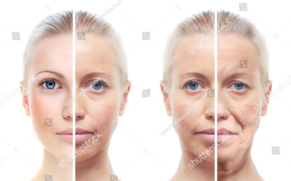 Botox & Anti-Wrinkle Injections in Brighton