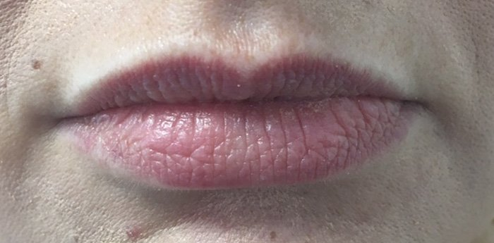 Lips before treatment