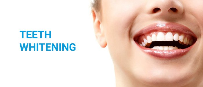 Teeth Whitening in Brighton