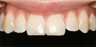 Example of white filling after treatment