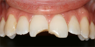 Example of white filling before treatment
